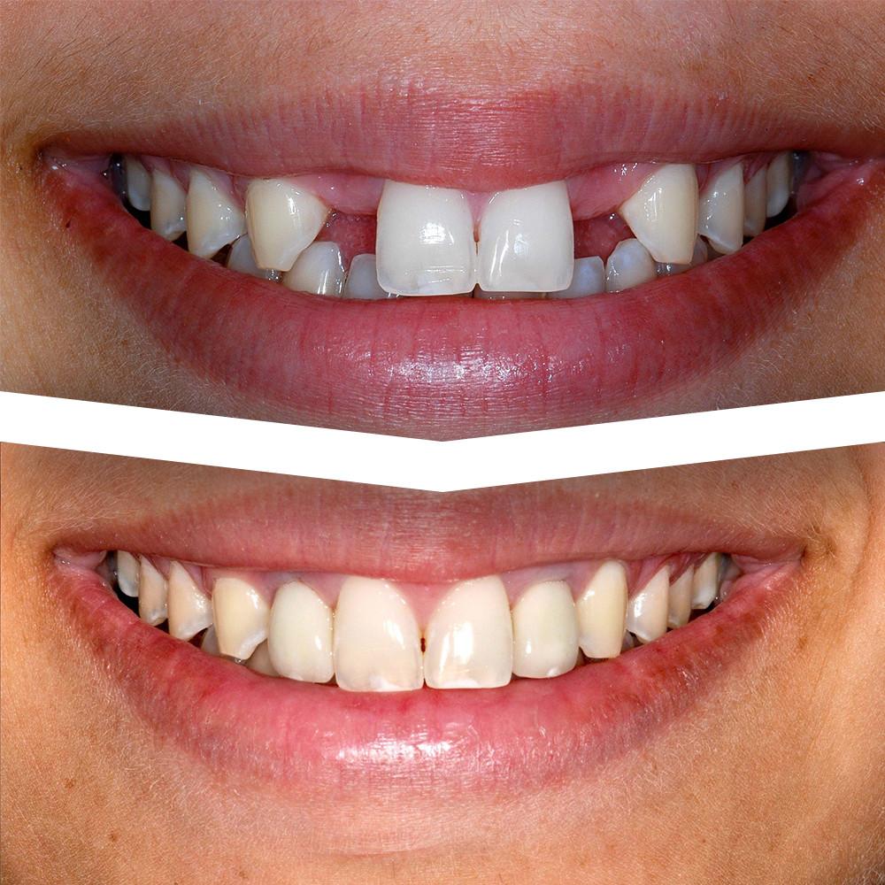Dental Implants Medical Prague